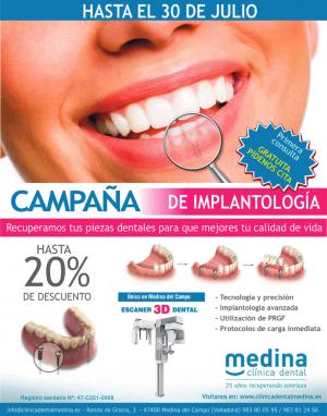 implantologia julio 2018