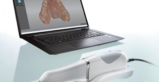 Escaner intraoral que hemos adquirido en Clinica Dental Medina