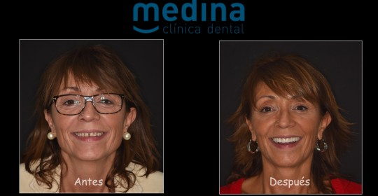 Caso paciente Dental Medina