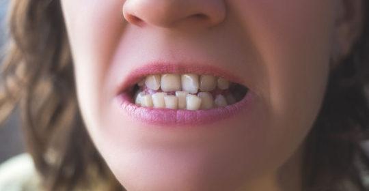 El apiñamiento dental y sus soluciones