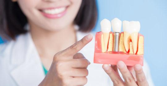 ¿Duelen los implantes dentales? (parte 2 de 2)